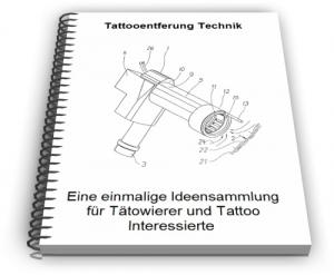 Tattooentfernung Tattoo Entfernen Technik Entwicklungen