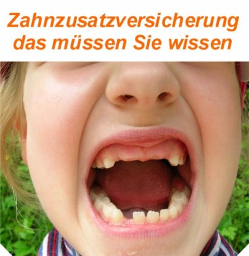 Zahnzusatzversicherung - schon gewußt?