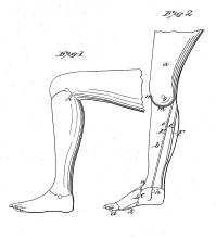 Patent-Kunstdruck Beinprothese